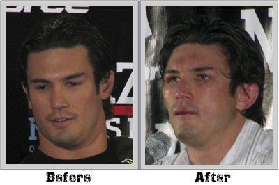 KJ Noons Before and after Strikeforce: KJ Noons Before and After Pictures