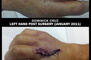 Dominick Cruz now has a Matching set of Bionic Hands (pictures)